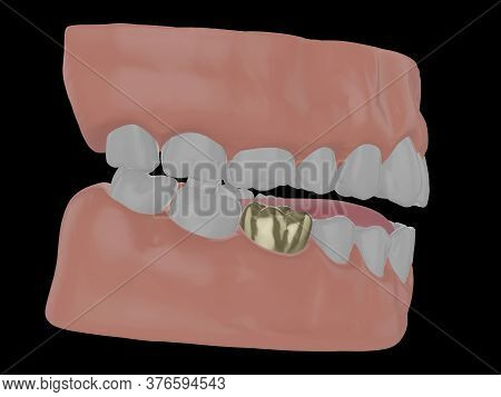 Human Jaw With Gold Tooth, Golden Crown Of A Molar, 3d Render
