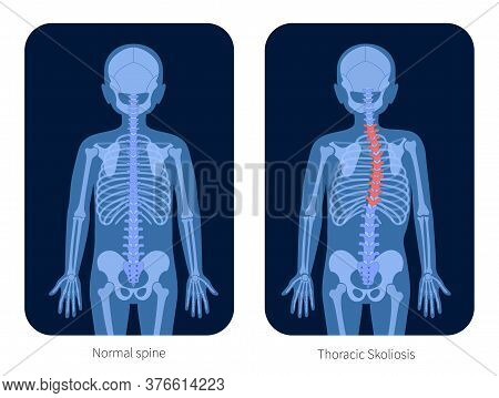 Normal Spine And Thoracic Scoliosis In Boy Body. Xray Flat Vector Illustration. Backbone, Joint And