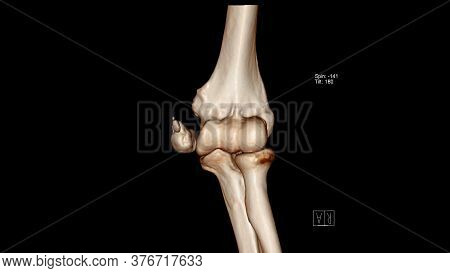 Radiology Examination, Computed Tomography Volume Rendering Examination Of The Elbow Joint ( Ct Vr E