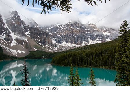 A Out-of-focus Camera In The Foreground And Emerald Lake In The Background.  Ab Canada