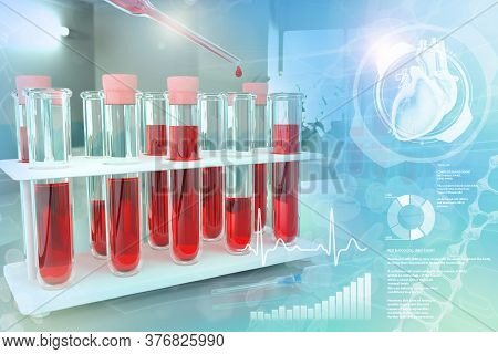 Medical 3d Illustration, Proofs Vials In University Clinic - Blood Analysis For Calcium Or Lupus Wit