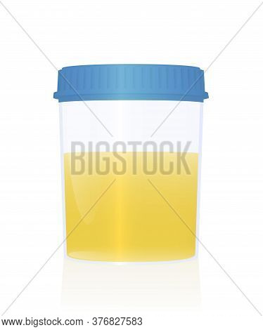 Urine Sample In A Specimen Cup With Blue Cap For Urological Analysis And Medical Examination. Isolat
