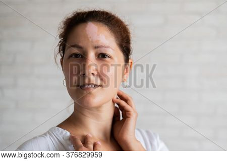Vitiligo. Portrait Of A Beautiful Smiling Woman With Lack Of Skin Pigmentation On Her Forehead. A Gi