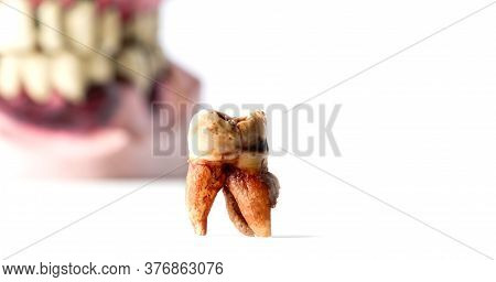 Partial Wooden Dentures And Real Tooth With Caries And Cavities On White Background With Copy Space.
