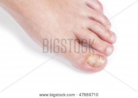 Skin Fungus On The Nail, On The Female Foot. Close-up.