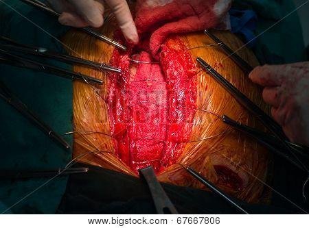 Closure Sternum Bone With Metal Wires