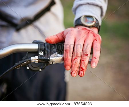 a mountain biker cyclist with blood all over his hands from wrecking his bike and sustaining a bloody nose injury. shallow depth of field