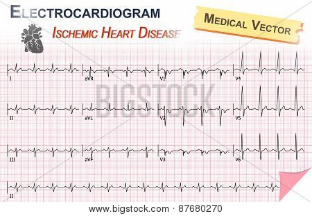 Electrocardiogram ( Ecg , Ekg ) Of Ischemic Heart Disease ( Myocardial Infarction )