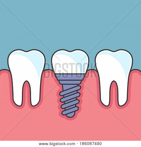 Row of teeth with dental implant - dental prosthetics