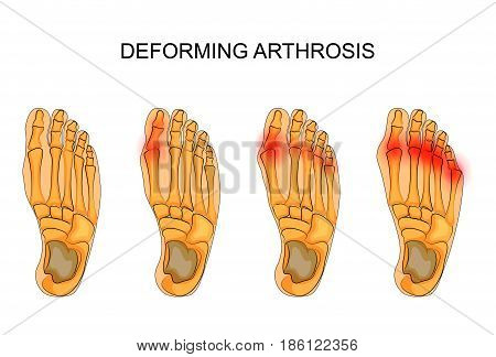 vector illustration of deforming arthrosis of the foot. the skeleton of the foot