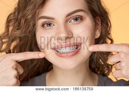 curly hair woman with brackets on biege background close-up
