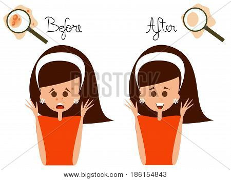 Vector illustrated woman face with acne problem with before and after text