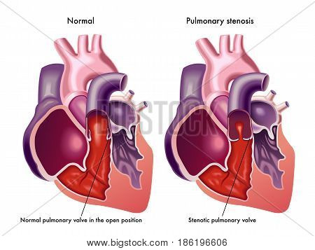 vector medical illustration of the symptoms of pulmonary stenosis
