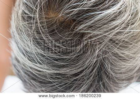 Going gray in young woman shows her gray hair hair getting grey and balding