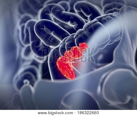Colorectal cancer, medical anatomical illustration. 3d illustration.