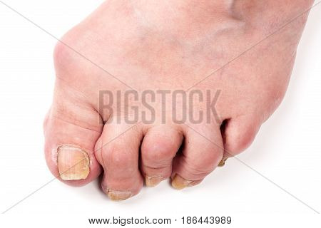 Rheumatoid polyarthritis on foot isolated on white background.