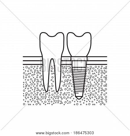 Dental implant located adjacent to a healthy tooth in a patients mouth, vector illustration isolated on white background