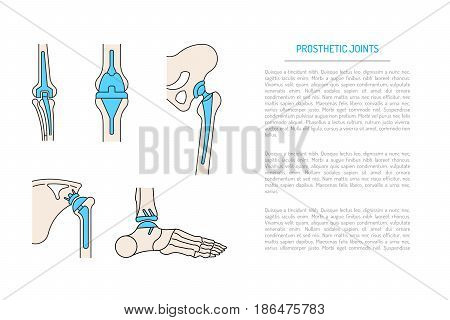 Medical illustration of the implantation of the bone joints in the human skeleton. Layout of implants, artificial joints, in different parts of the human body