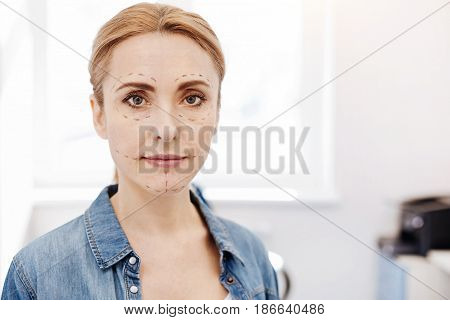 Face surgery. Pleasant nice blonde woman standing and looking at you while having marks on her face