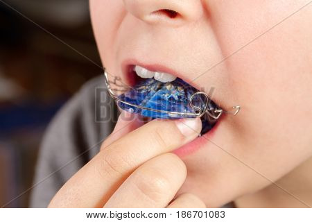 Child with orthodontic appliance. Boy holds an orthodontic appliance in his hand