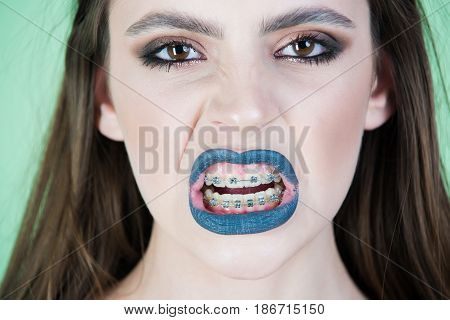 Fashion Beauty Girl With Grey Make Up And Teeth Braces