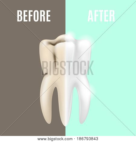 Professional Teeth Whitening Before and After Dental Health Care Stomatology. Vector illustration