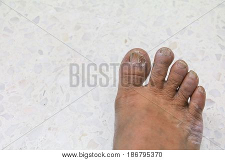ingrown nail Big toe broken toenail on a terrazzo floor background