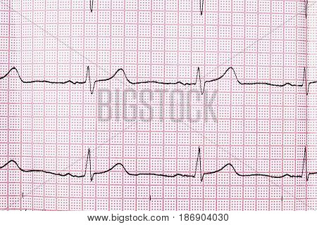 Close up of an electrocardiogram in paper form