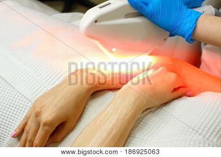 Hardware cosmetology. Depilation. Elos hair removal. Man is unrecognizable. Beautiful female hands.