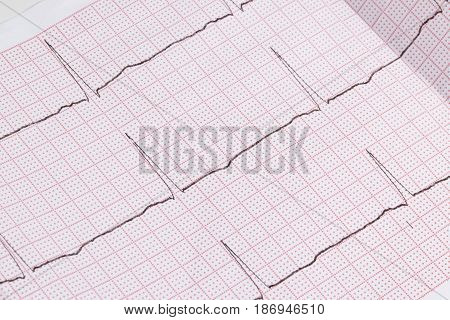 Close up of an electrocardiogram in paper form medical healthcare