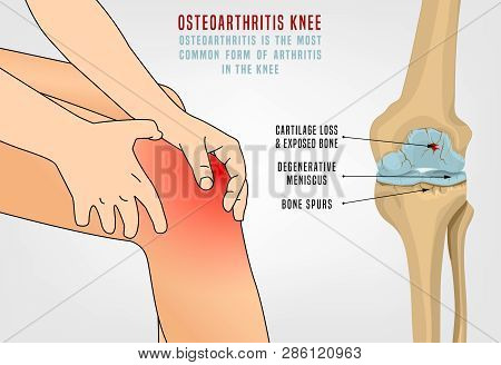 Osteoarthritis Of The Knee. Editable Vector Illustration In Detailed Realistic Style Isolated On A L