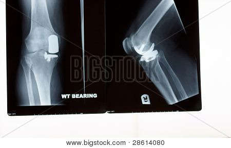 A X-ray Of A Partial  Knee Replacement