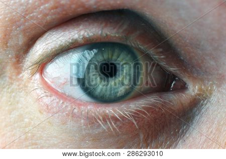 Man Eye With Contact Lenses And Blood Capillaries. Macro Shot.
