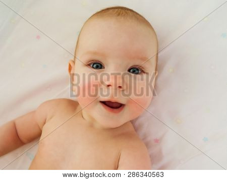 Little Cheerful Baby Girl Baby Takes Sun And Air Baths, Skin Dipping. The Baby Has Redness On The Ch