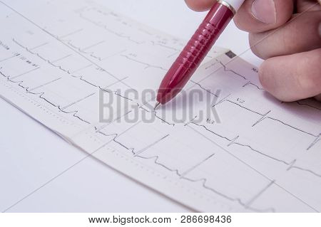 Doctor In The Office Indicates The Patient Using A Ballpoint Pen On Segment With The Pathology, Dete