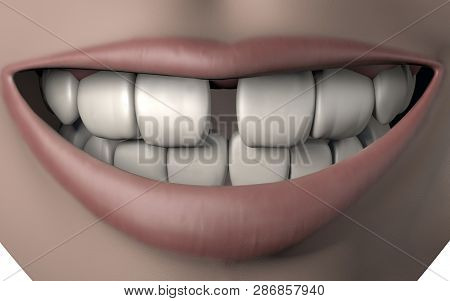 3d Illustration Of Woman Mouth Full Of Strong White Teeth With Gap Malocclusion Smile Lips