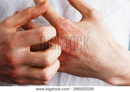 Man Scratch Oneself, Dry Flaky Skin On Hand With Psoriasis Vulgaris, Eczema And Other Skin Condition