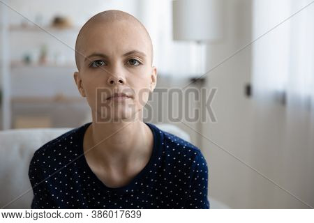 Portrait Of Unhappy Sick Hairless Woman Suffer From Oncology