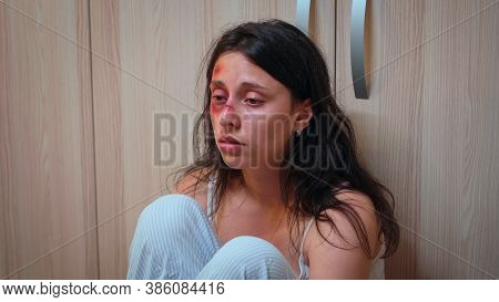 Close Up Of Assaulted Woman Trumbling Of Pain On The Floor. Alcoholic Aggressive Husband Abusing Inj
