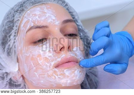 Cosmetologist Is Applying Cream With Anesthesia On Patients Face, Portrait Closeup View. Preparing S