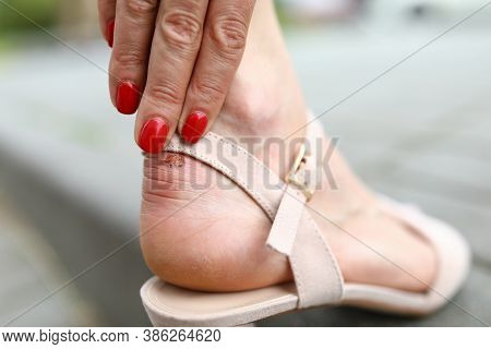 Close-up Of Woman Wearing Uncomfortable Shoes. Person Touching Callus On Leg. Nice Red Manicure On H