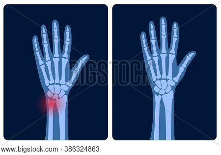 X Ray Of Arm Fracture With Red Pain Point And Normal Arm. Broken Hand With Inner Closed Greenstick D