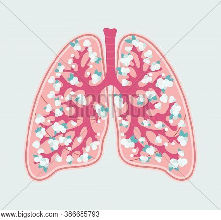 Respiratory System Of Human - Lungs With Alveoli. Anatomical Diagram In Floral Style. Patient-friend