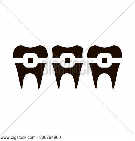 Dentist Stomatology Teeth Braces Vector Sign Icon . Teeth Braces Bracket, Orthodontic Appliance Pict