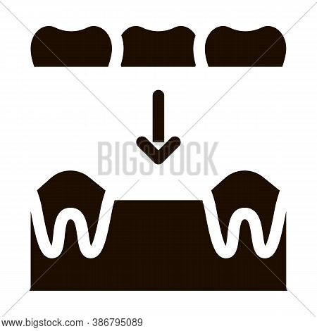 Dental Prosthesis Stomatology Vector Sign Icon . Stomatology Dentist Instrument Equipment And Device