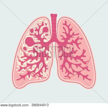 Tuberculosis In Lung Of Human. Respiratory Diseases - T.b. - Anatomical Diagram In Hand Drawn Style.