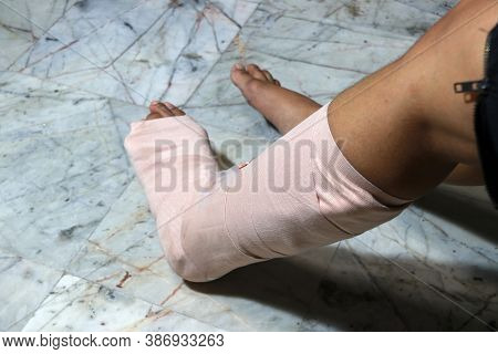 Left Legs And Feet Be In Plaster Cast Because Splintered, Splint Is A Strip Of Rigid Material Used F