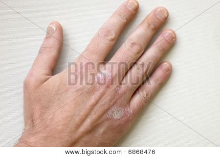 Psoriasis - Psoriasis On The Hands And Fingernails