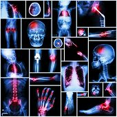 Collection of X-ray multiple part of human , Orthopedic operation and multiple disease ( Shoulder dislocation , Stroke , Fracture , Gout , Rheumatoid arthritis , Bronchiectasis , Osteoarthritis knee , etc ) poster