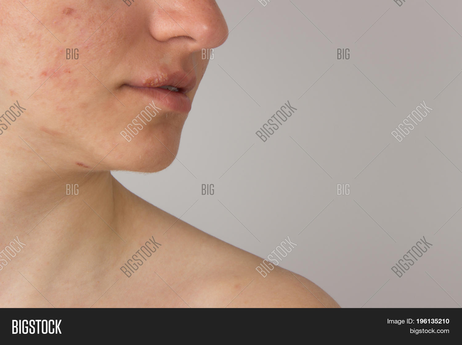 Facial blemishes herpes